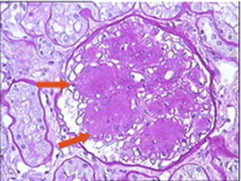 Light Chain Deposition Disease by Renal Pathology Learning F Ferrario Diabetic Nephropathy