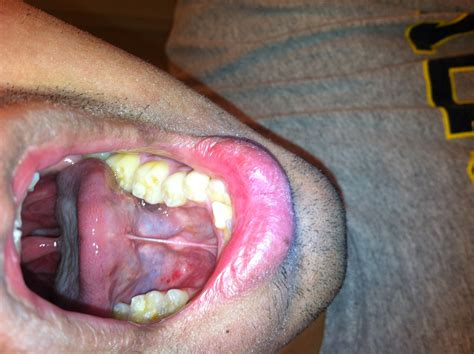 Bumps On Floor Of Tongue by Spots Bumps On Floor Of