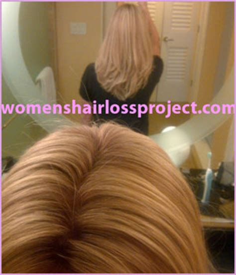 follea toppers transitioning into a full wig women s hair loss project