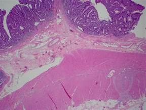Gastrointestinal Stromal Tumor Pathology Outlines by Pathology Outlines Gastrointestinal Stromal Tumor Gist