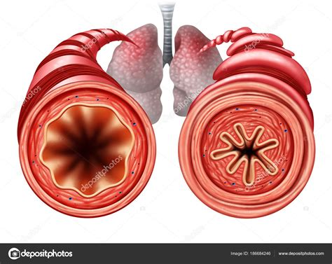 asthma diagram asthma diagram stock photo 169 lightsource 186684246