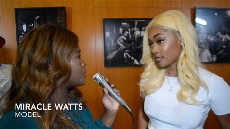 pictures of miracle watts before surgery miracle watts talks becoming a entrepreneur after