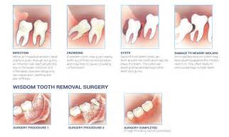 impacted wisdom teeth your ultimate guide healthrow net
