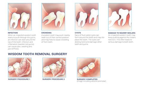 impacted wisdom teeth your ultimate guide health row