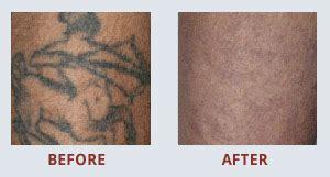Tattoo Removal Glasgow | glasgow tattoo removal tattoo removal in glasgow