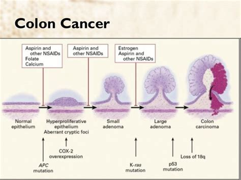 Stool Changes Colon Cancer by Colon Cancer