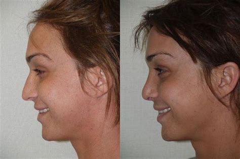 male to female after surgery before and after pictures of transgender