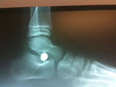 Mba Implants In Adults by Flatfeet Pictures Podiatry Orthopedics Physical Therapy