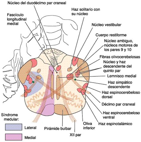 nucleo vestibular fundamentos medics 174 s 237 ndrome de wallenber o sindrome
