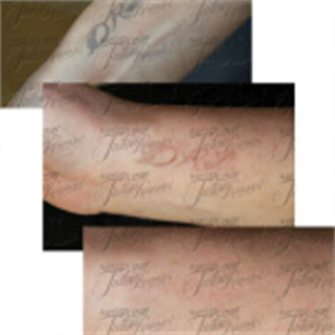sugarland tattoo removal laser removal before and after pictures