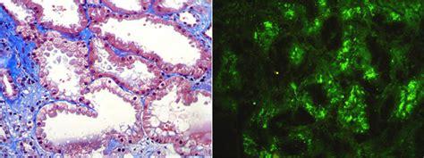 enfermedad de cadenas ligeras y pesadas amiloidosis y otras
