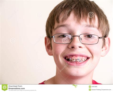 young cute boys with braces happy teen boy with braces smiling stock photo image
