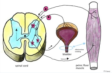 bladder spasms after c section interstitial cystitis bladder pain syndrome glowm