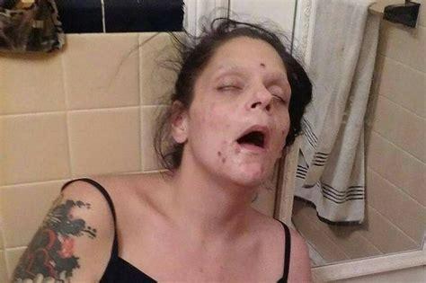 bathroom fack horrifying pictures of dead girl in the grip of heroin