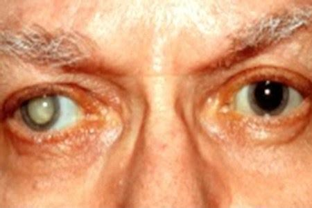 eye problems that cause blindness top 3 causes of diabetic blindness common causes of