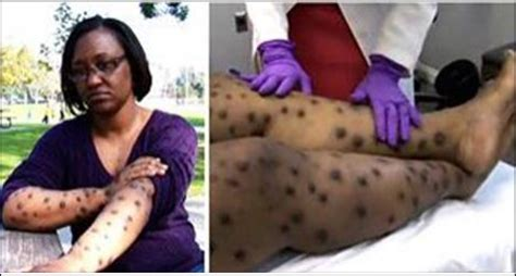 skin whitening what africas lady gaga really thinks bbc news south african woman turns into a leopard after trying to