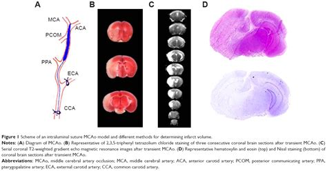 Whats Better A 4 0 Undergrad O F2 0 Mba by Text Animal Models Of Ischemic Stroke And Their