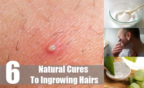 6 cures for ingrowing hairs how to treat ingrown