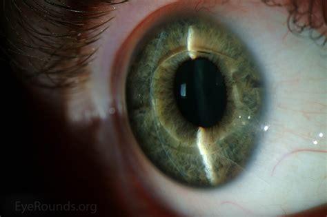 verisyse phakic intraocular lens implant for high myopia