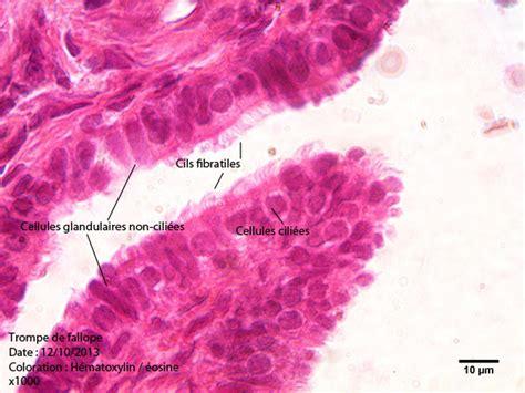 pavillon uterus trompe de fallope anatomie pathologie humaine mikroscopia
