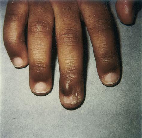Harga Emina Nail injured toenail bed nail ftempo