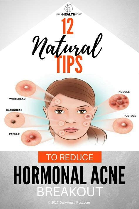 Detox Diet For Hormonal Acne by Best 25 Types Of Acne Ideas On