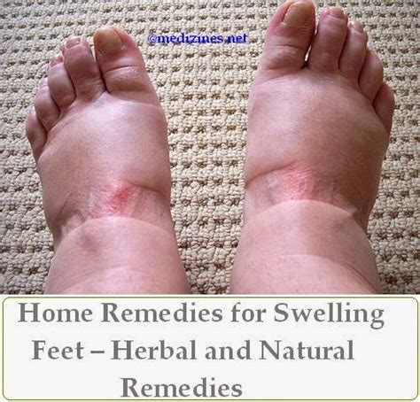 home remedies for swelling herbal and remedies