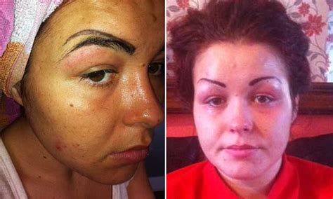 woman looks like a clown after botched eyebrow tattoo