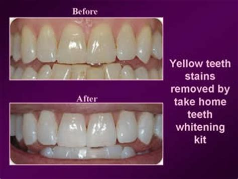 Dr Whitening Care Orioginal Pux2 cosmetic dentist culver city cosmetic dentist