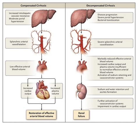 full body tattoo liver failure renal failure in cirrhosis nejm