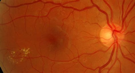 background diabetic retinopathy background diabetic retinopathy