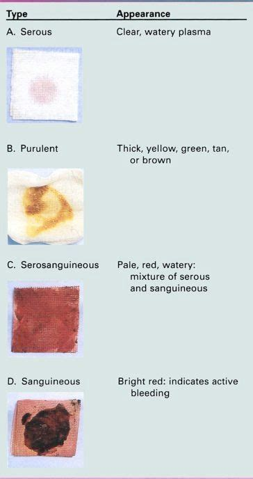 serosanguinous color serosanguinous color 28 images print wounds flashcards