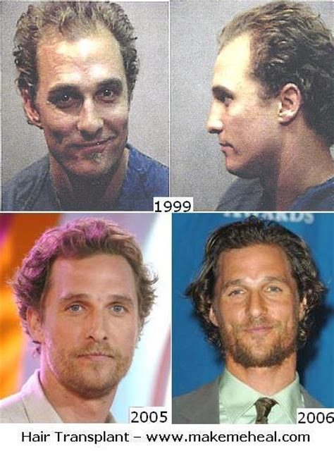 has sting had a hair transplant matthew mcconaughey hair transplant yay or nay hair