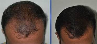 treating hair fall 50 hair transplantation cochin kerala hair loss treatment
