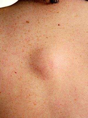 skin bumps pictures what is that skin growth skin and center everyday health
