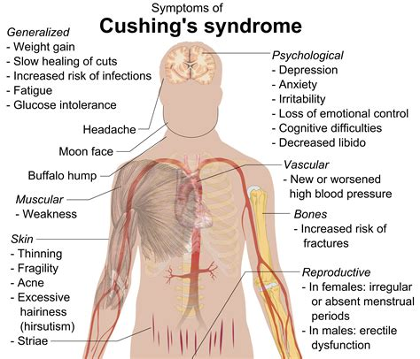 does the depo shot cause mood swings opinions on cushing s syndrome