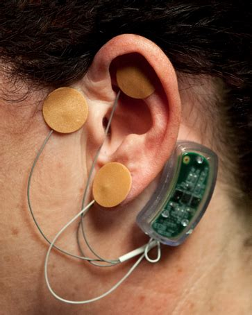 Bridge Device For Opioid Detox Cpt Hcpcs Code 2017 by Effects Of Peri Auricular Percutaneous Electrical Neuro