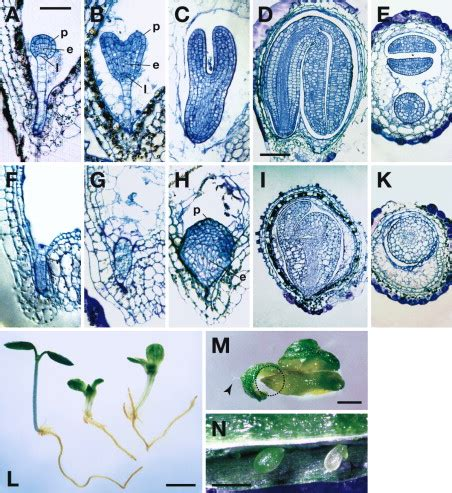 regulates pattern formation a mapkk kinase gene regulates extra embryonic cell fate in
