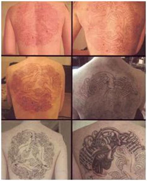 stages of a healing tattoo cosmetic skin care center healing process