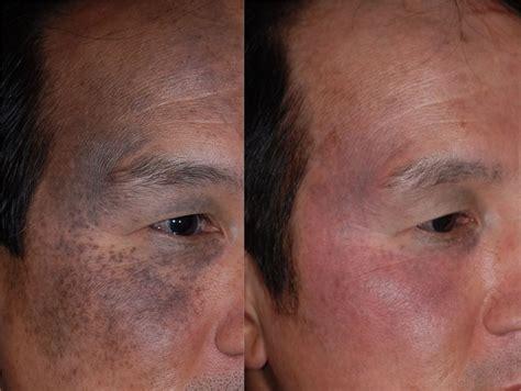 imagenes de manchas oscuras en la cara manchas oscuras en la piel instituto de fotomedicina