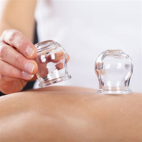 Cupping Detox Therapy by Cupping Cupping