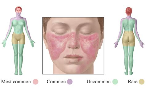 a new for lupus treatment cnrs news