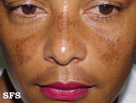 Melasma 5 In 1 heredity factors and hormone fluctuation production the rash is most common in females