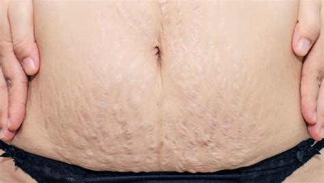 Stretch Marks by How To Get Rid Of Stretch Marks How To Prevent Stretch Marks