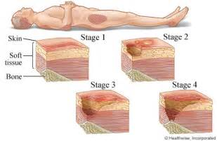 bed sores pics stages of pressure sores
