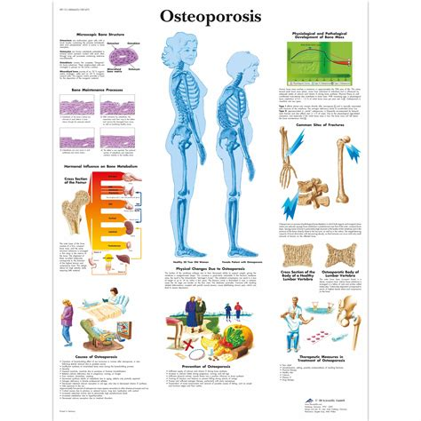 anatomical charts  posters anatomy charts geriatric