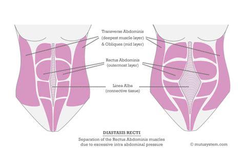 diastasis recti  muscles mutusystem
