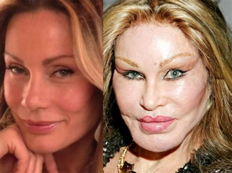 20 Celebrities who Aged Badly Really Badly