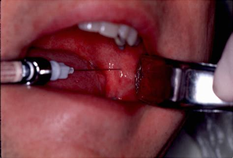 inferior alveolar nerve block agaclip make your video clips