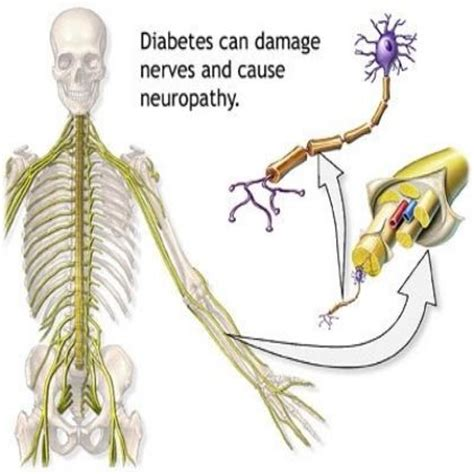 diabetes the real cause and the right cure books 17 best images about diabetic neuropathy on